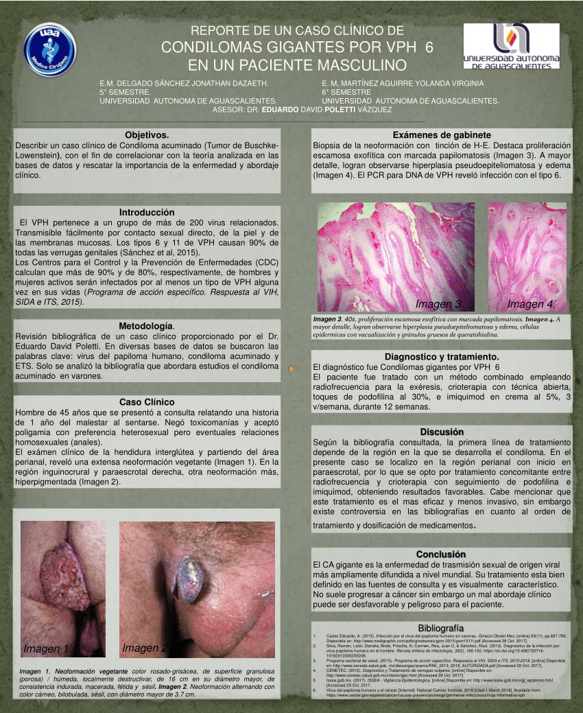virus del papiloma numero 6
