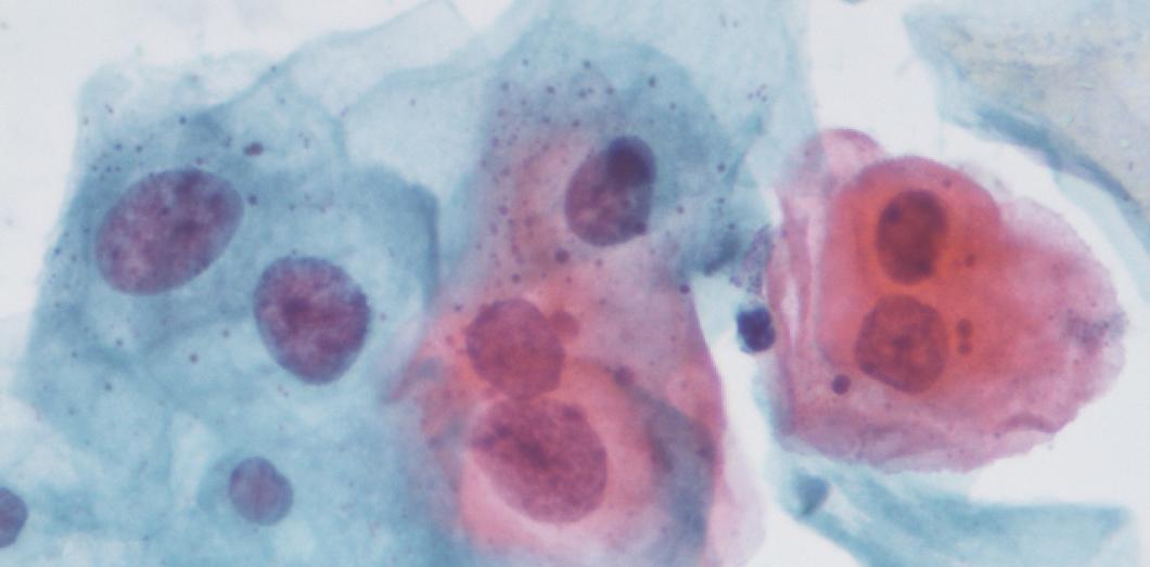 human papillomavirus vaccine gsk papiloma mâncărime pe ochi