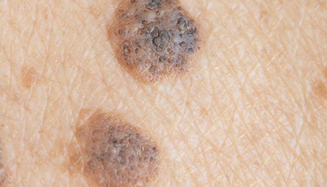 wart on leg skin cancer un bun și eficient management al paraziților