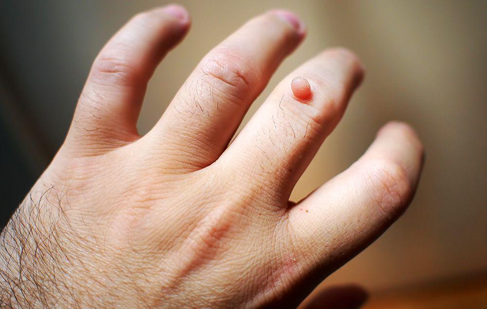 medicamente pentru giardiază sentimente infecțioase ale unui parazit adult