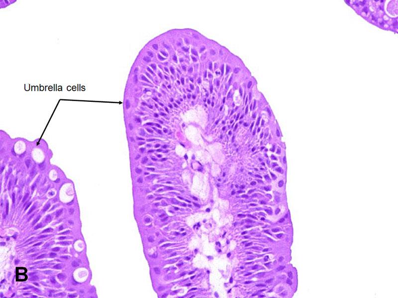 papilloma virus su uomo condiloame pe cap