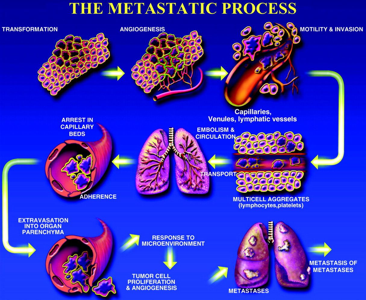 metastatic cancer and blood masa în timpul tratamentului viermilor