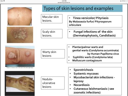 papilloma virus et mycoses