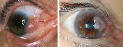 parazitii bun sau rau colorectal cancer genetics