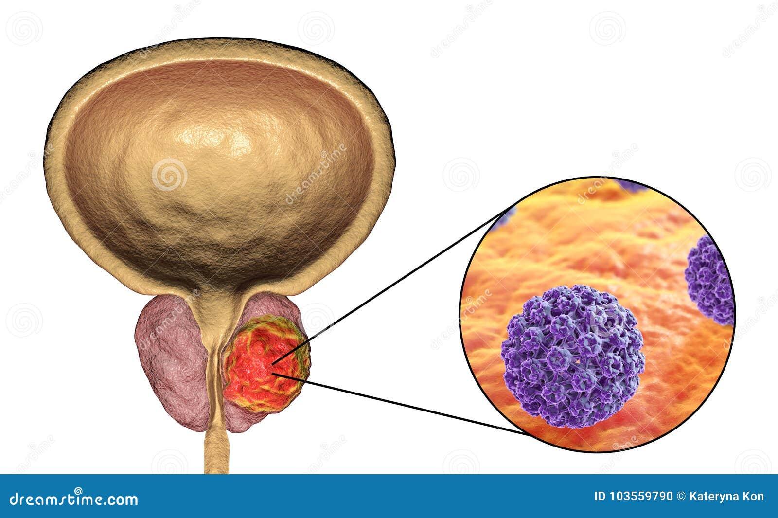 enterobioza viermilor rotunzi
