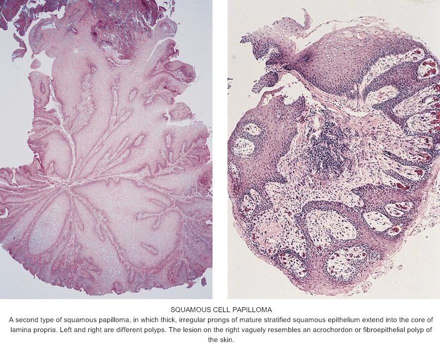 squamous papilloma esophagus pathology outlines cancer de prostata nivel 9