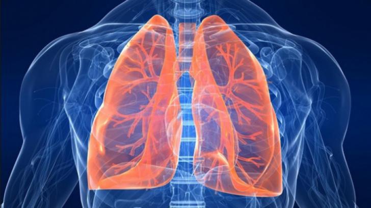 cancer la plamani manifestare papillomavirus hpv homme