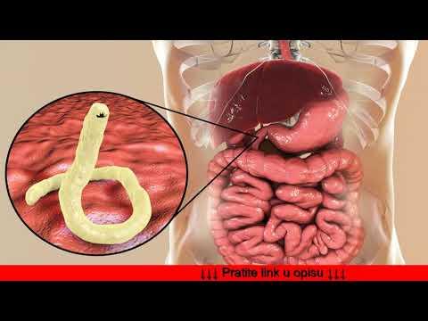 fares curatarea sangelui enterobius vermicularis kontil