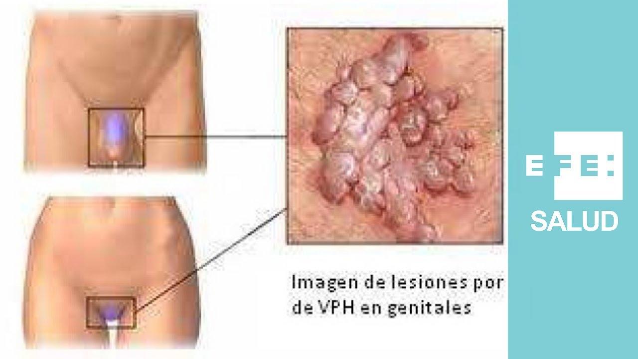negi genitale ale papilomului hpv causes of cancer