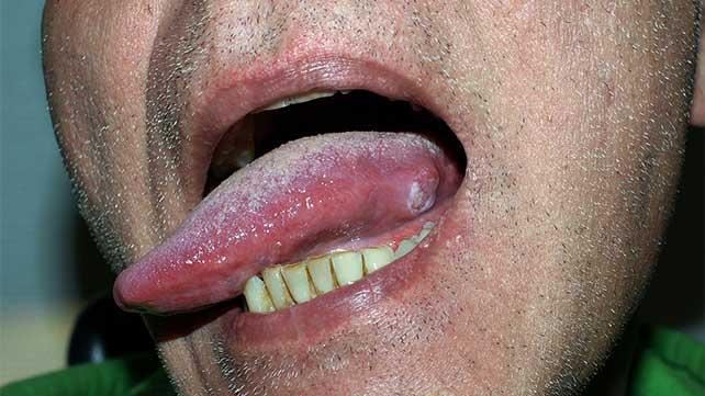 papillomavirus on tongue enterobioza ca transmisă