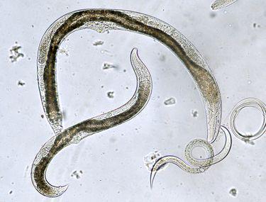 parazitii intestinali
