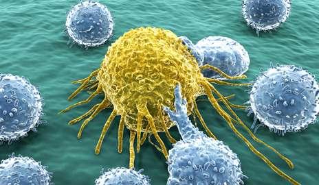 metastatic cancer and blood cum și unde să eliminați negii genitali