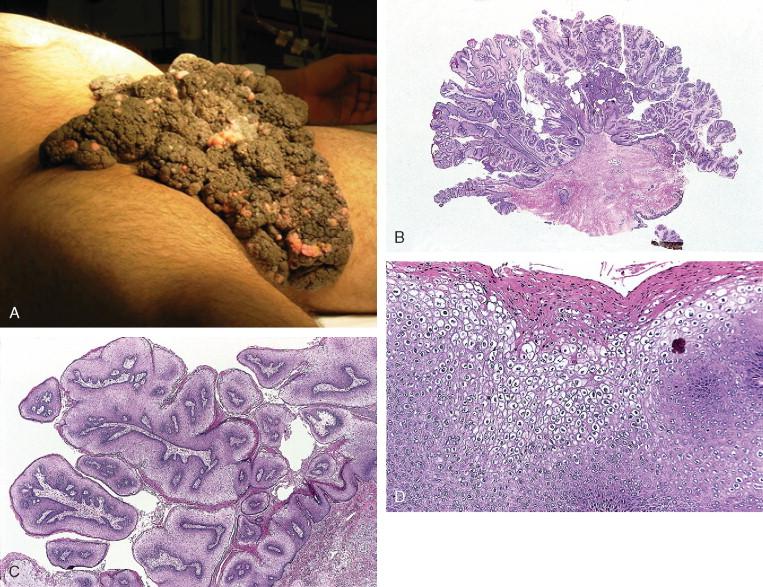 condyloma acuminata external hiv and prostate cancer