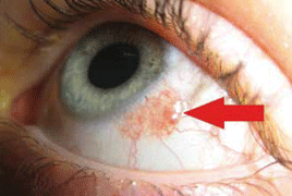 Causes for nasal papilloma, Conjunctival inverted papilloma