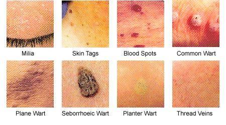 Papilloma virus szemolcs Hpv treatment warts