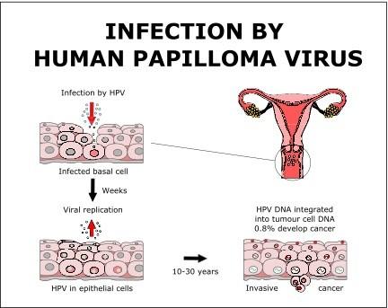 papillomavirus infection treatment hpv skin rash treatment
