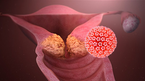 lesioni papilloma virus uomo