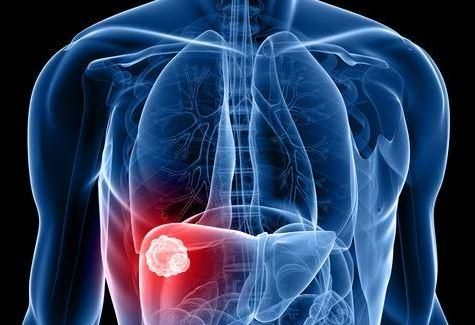 hpv related laryngeal cancer sunt condiloame vindecabile