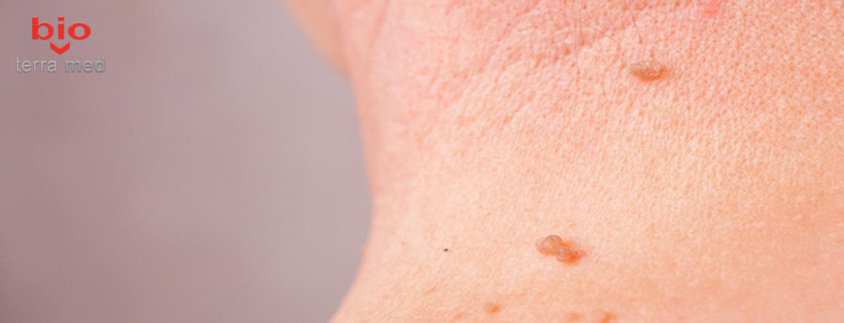 suplimente detox cvs efect helmint