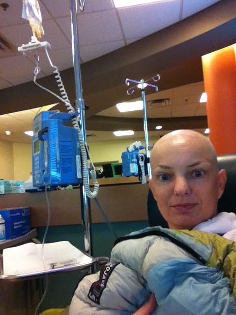hpv throat cancer chemo dacă este necesară cauterizarea condiloamelor