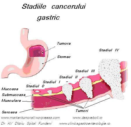 cancer gastric stadiul 3 descrierea giardiozei