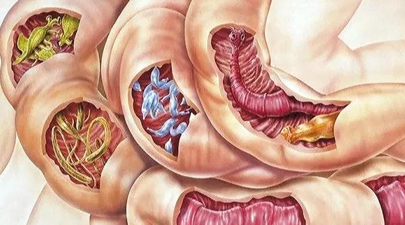 curăță medicamentul paraziților viermi în plămânii copiilor