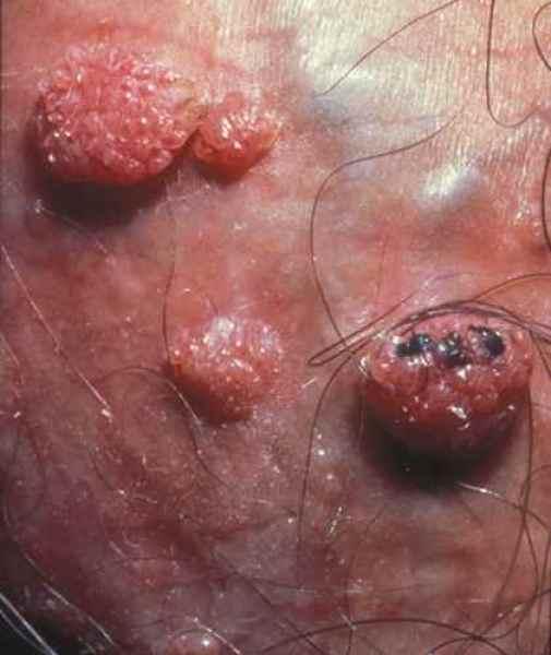 papillomavirus probleme peau helminth diseases