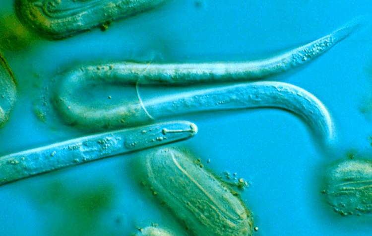 Nematode, Capillaria, Viermi rotunzi