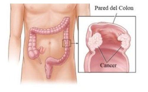 tratarea giardiozei și a viermilor cum să eliminiți viermii în pancreatită