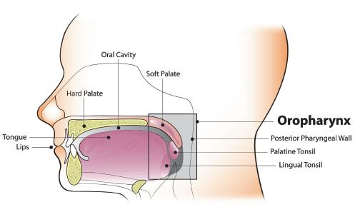 hpv associated oropharyngeal cancer symptoms