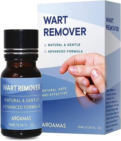 wart treatment natural