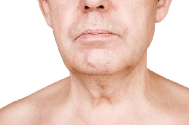 cancer gorge papillomavirus traitement