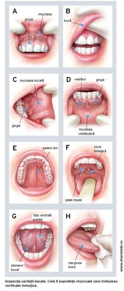 cancerul planseului bucal organismele sunt paraziți