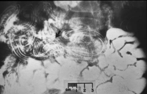 papilloma throat symptoms pastile de prevenire a paraziților