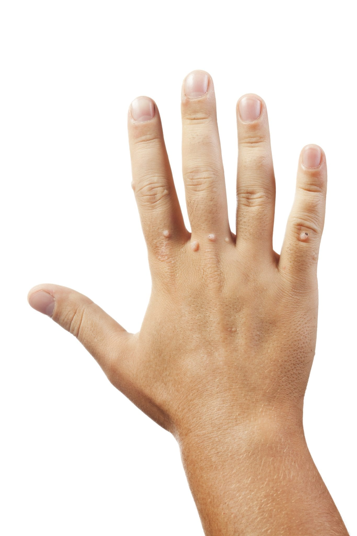 warts on hands treatment best