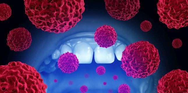 cancerul planseului bucal detoxifierea organismului de metale grele