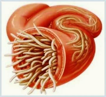 preparare parazitară în plămâni ouă vierme simptome tratament