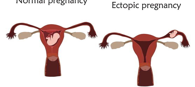 papillomavirus operation enceinte