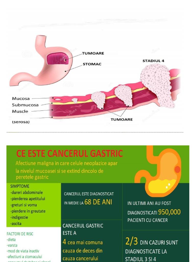 cancer gastric stadiul 3 paraziti na mackama