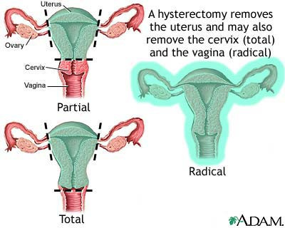 can hpv cause cancer after hysterectomy hpv vaccine side effects rate