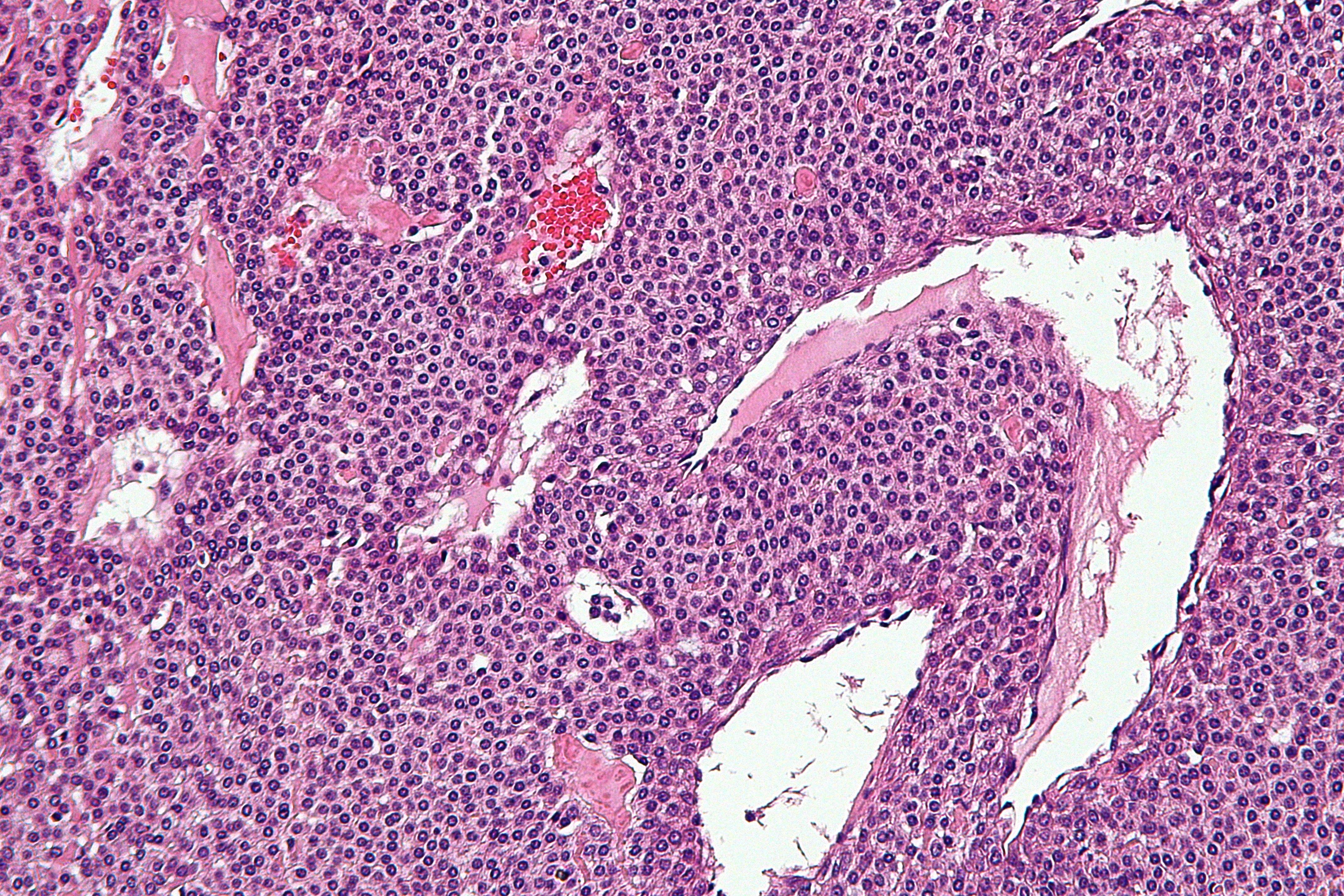 cancer malign dex