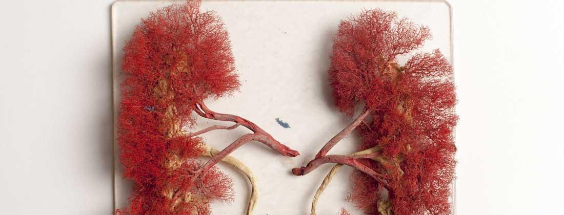 Totul despre ecografia prostatica transrectala, Cancerul de prostata se vede la ecograf