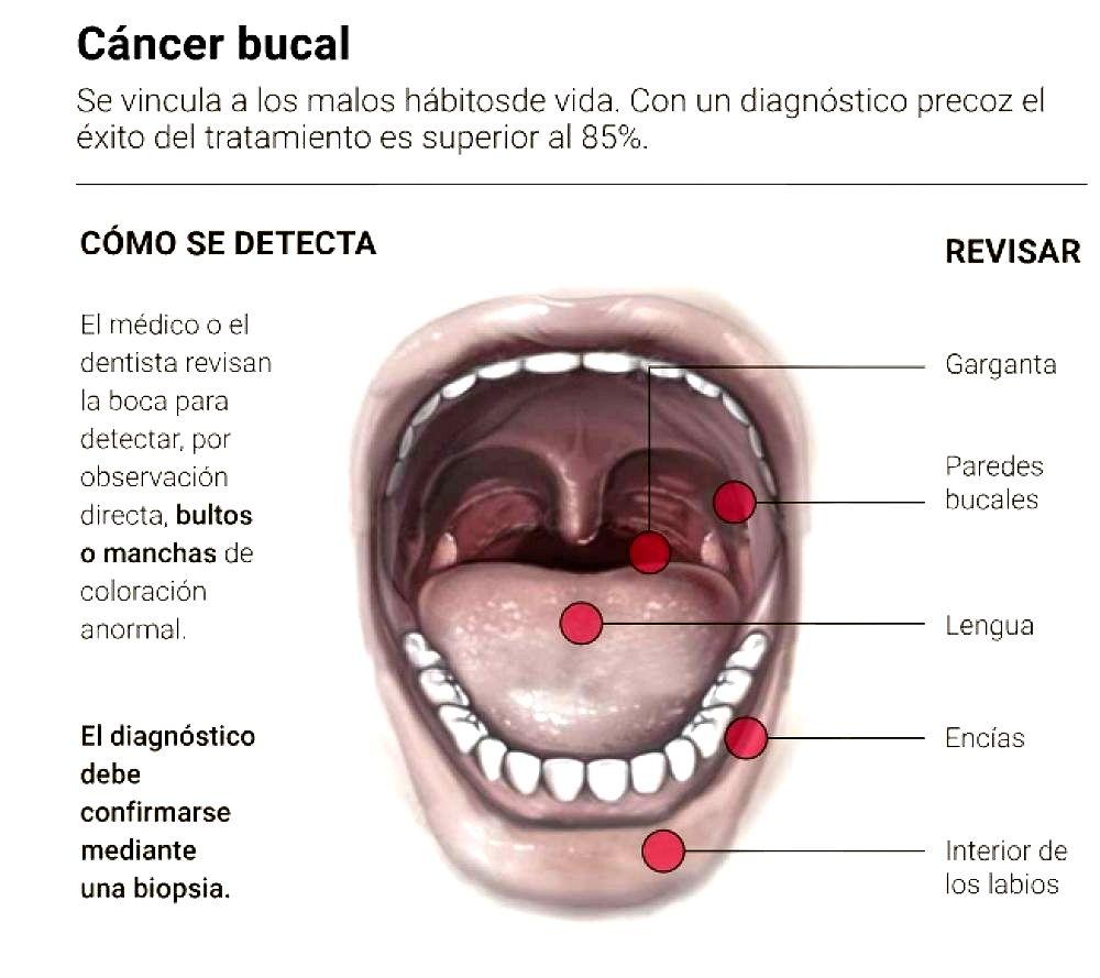 cancerul planseului bucal papilomul se retrage plat
