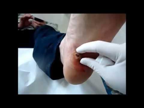 papiloma pie cancer antibiotice pentru giardiază