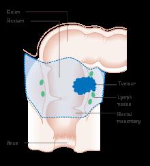 enterobioza de incubație