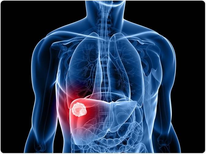hepatic cancer patient
