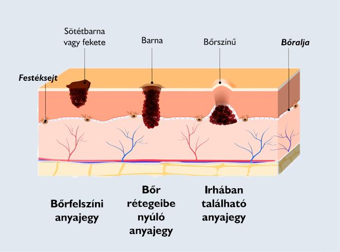 papilloma virus in gola paraziții provoacă arsuri la stomac