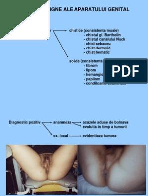 retete pt detoxifiere
