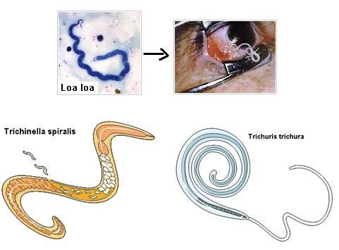 cancer genetic counseling visual aids condilomii și polipii colului uterin