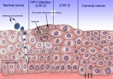 papilloma virus e cin 3
